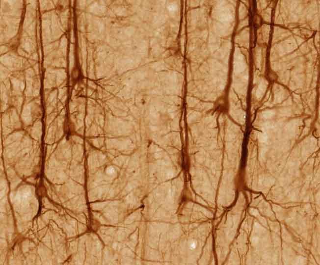 Parkinson e inflamación: papel del sistema inmunológico