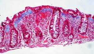 Disbiosis intestinal y su relación con el sistema inmunológico