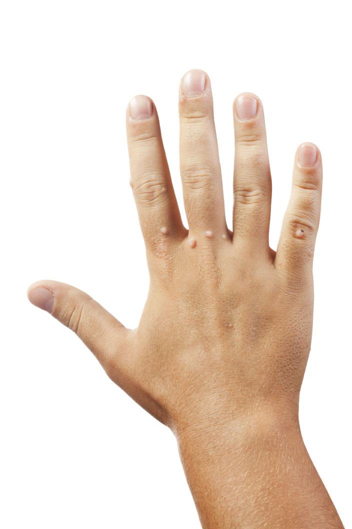 verrugas recurrentes en las manos