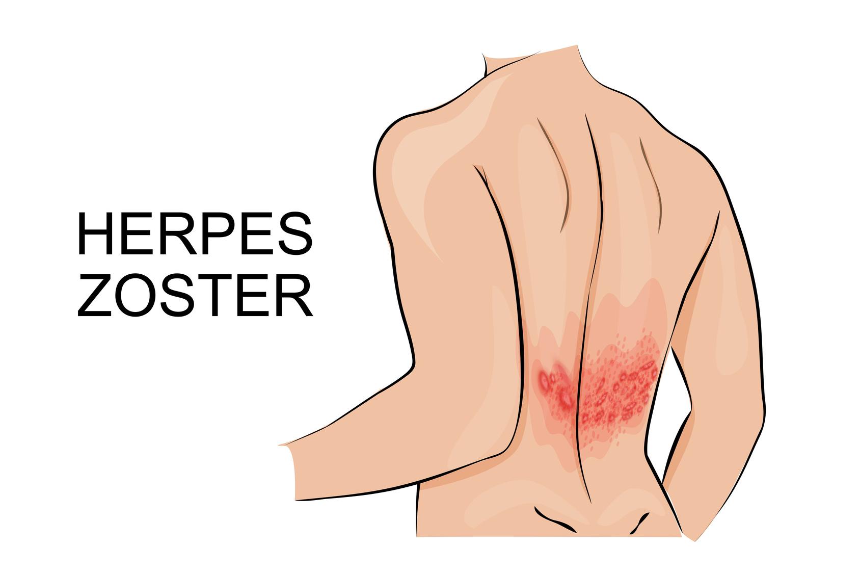 cual es el origen del herpes zoster