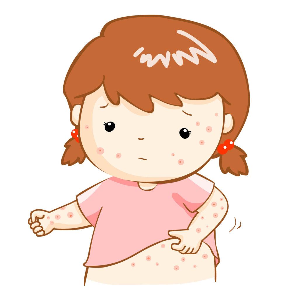 Varicela o cuando el picor de la piel no cesa