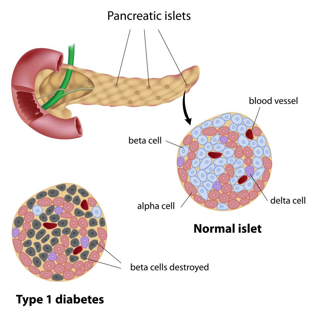 ¿Diabetes tipo 1?