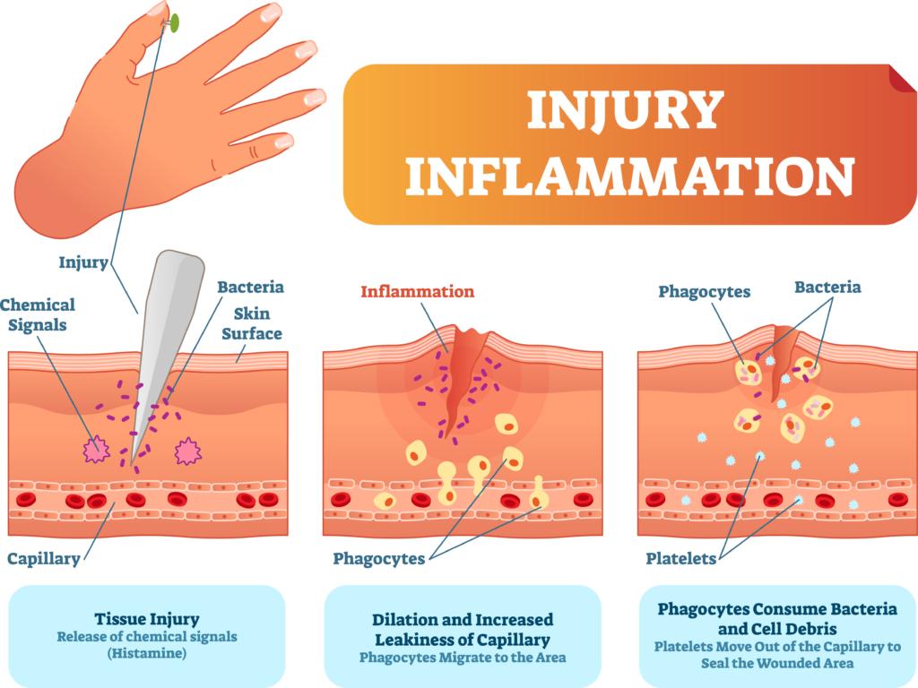 Repasamos: Inflamación,  tipos y patologías asociadas.